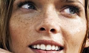 trattamento luce pulsata viso