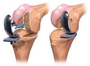 gonartrosi protesi 1