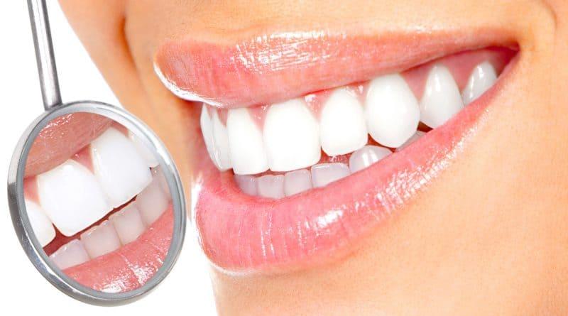 prezzi faccette dentali